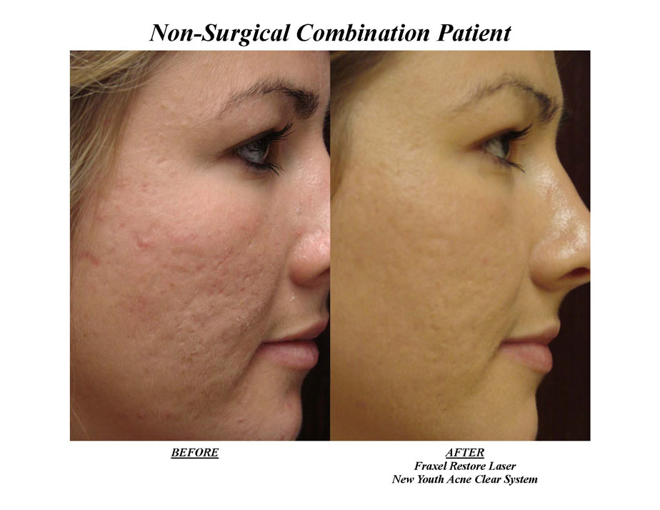 Before Amp After Photos New Youth Medical Spa Amp Laser