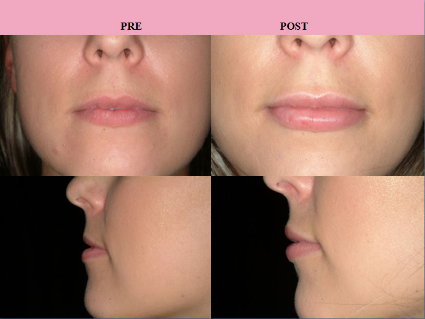 Lip Augmentation Before And After Or Enhancement With Injectables
