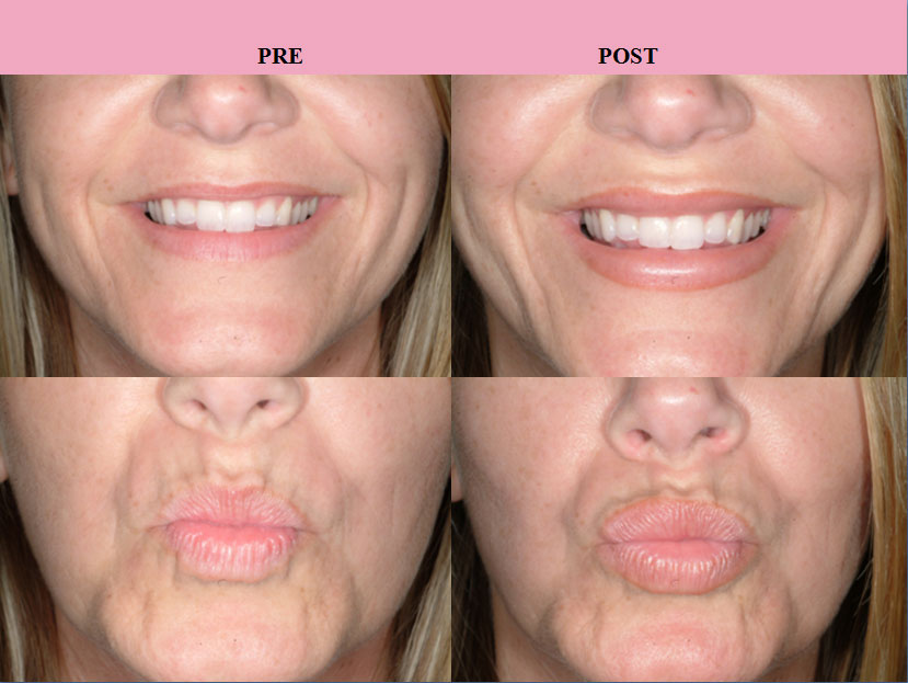 Lip augmentation or enhancement with injectables or permalip implants