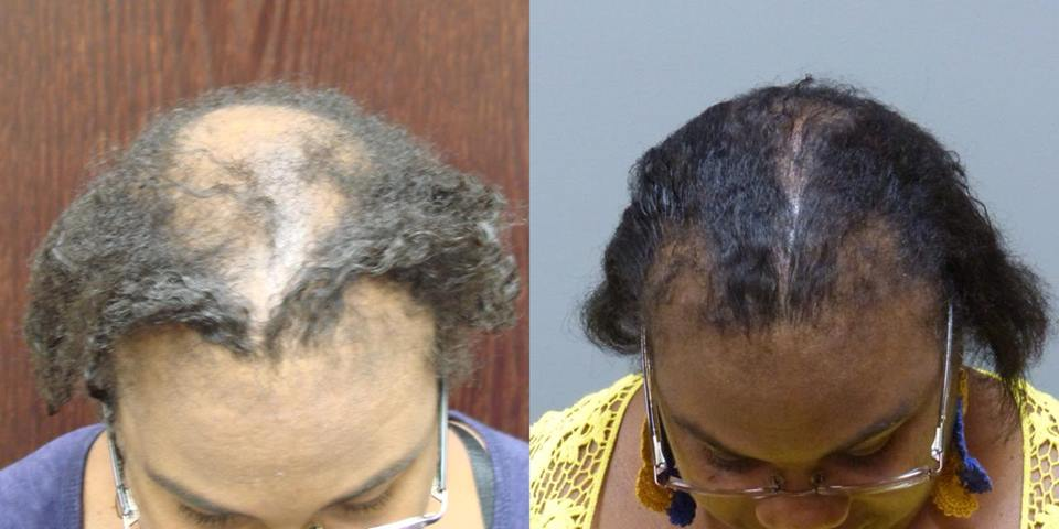 African American Hair Replacement in Savannah and Hilton Head