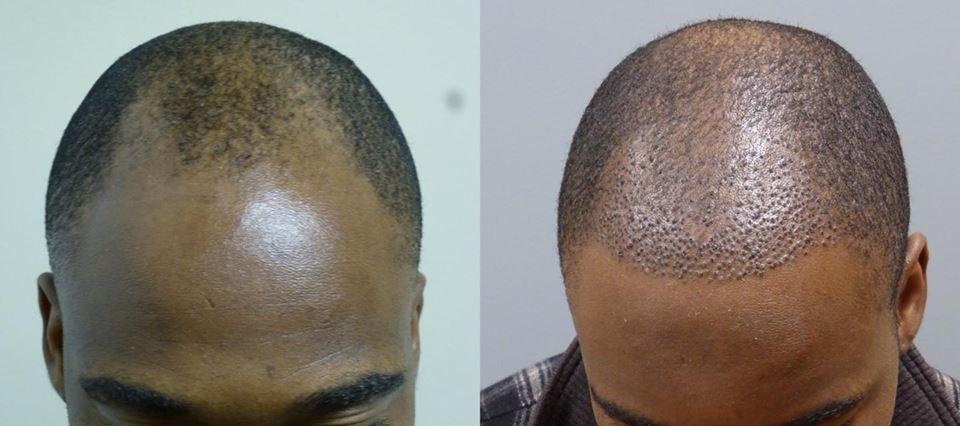 African American Hair Restoration in Savannah and Hilton Head