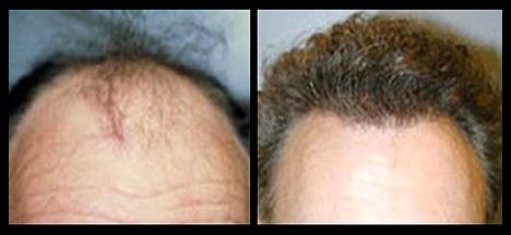 NeoGraft Hair Replacement Hair Restoration in Savannah, GA and Hilton Head, SC