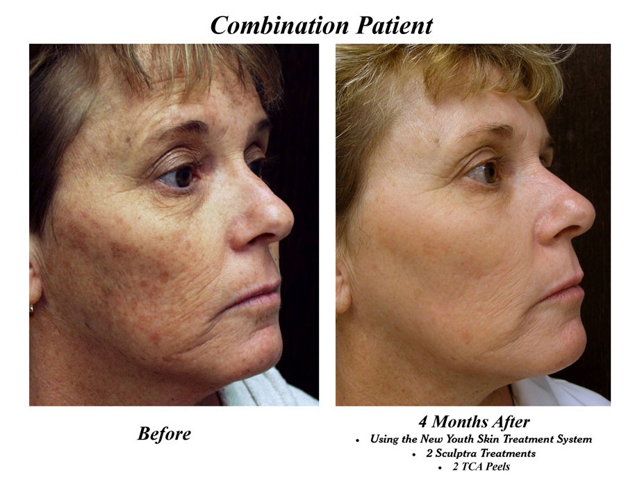 Before & After Photos - New Youth Medical Spa & Laser Center New Youth  Medical Spa & Laser Center