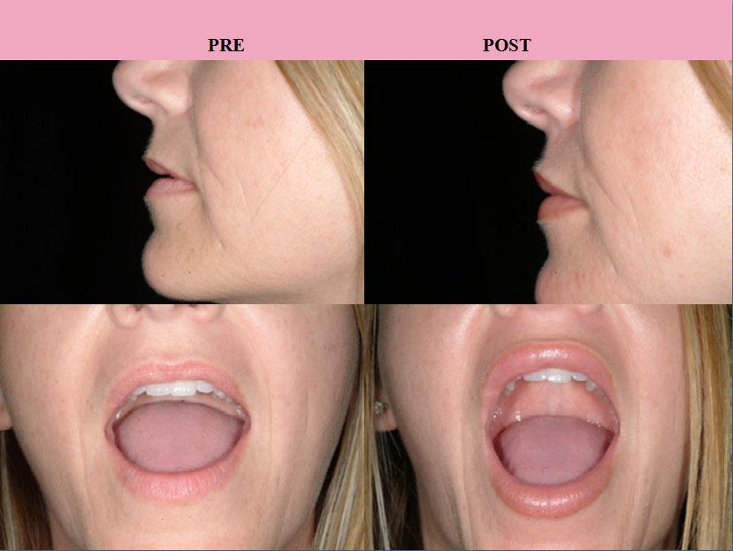 Implants Vs Natural Enhancement