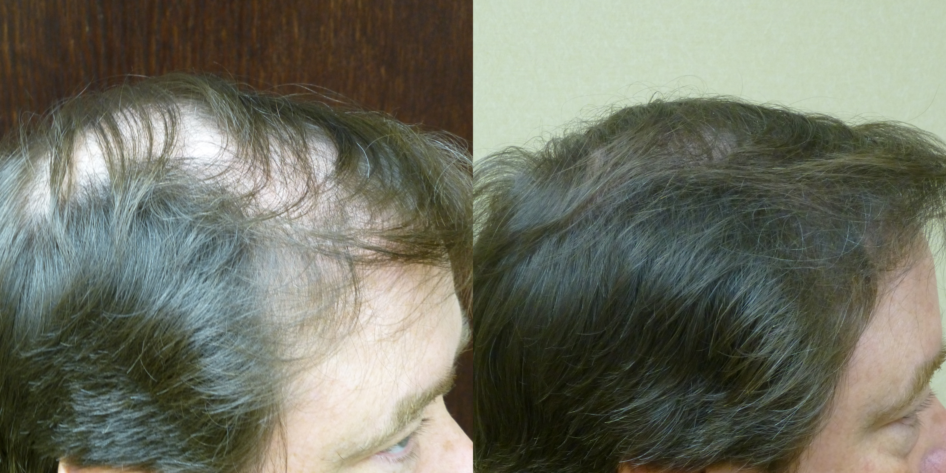 2500 Grafts Before & After (12 months later)
