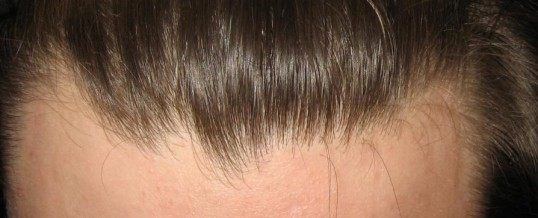 When Hair Transplant May Not be a Good Idea