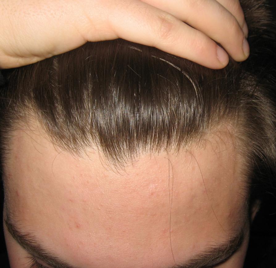 NeoGraft Hair Treatment for Younger Men