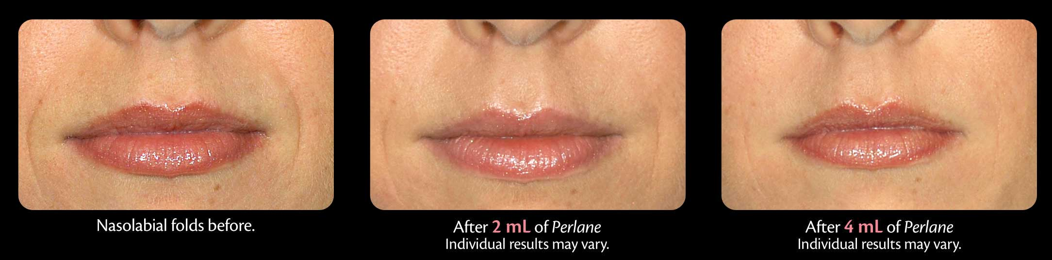 Perlane Treatment before and after