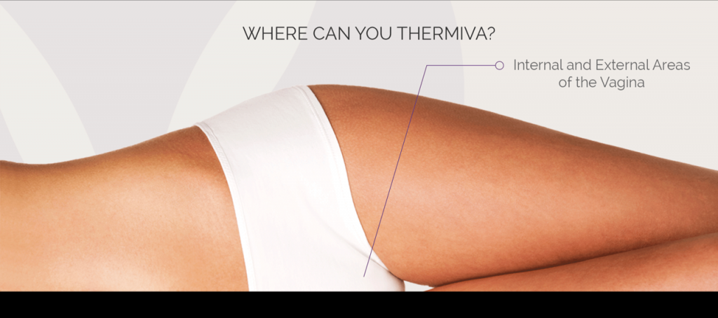 ThermiVA for Vaginal Rejuvenation