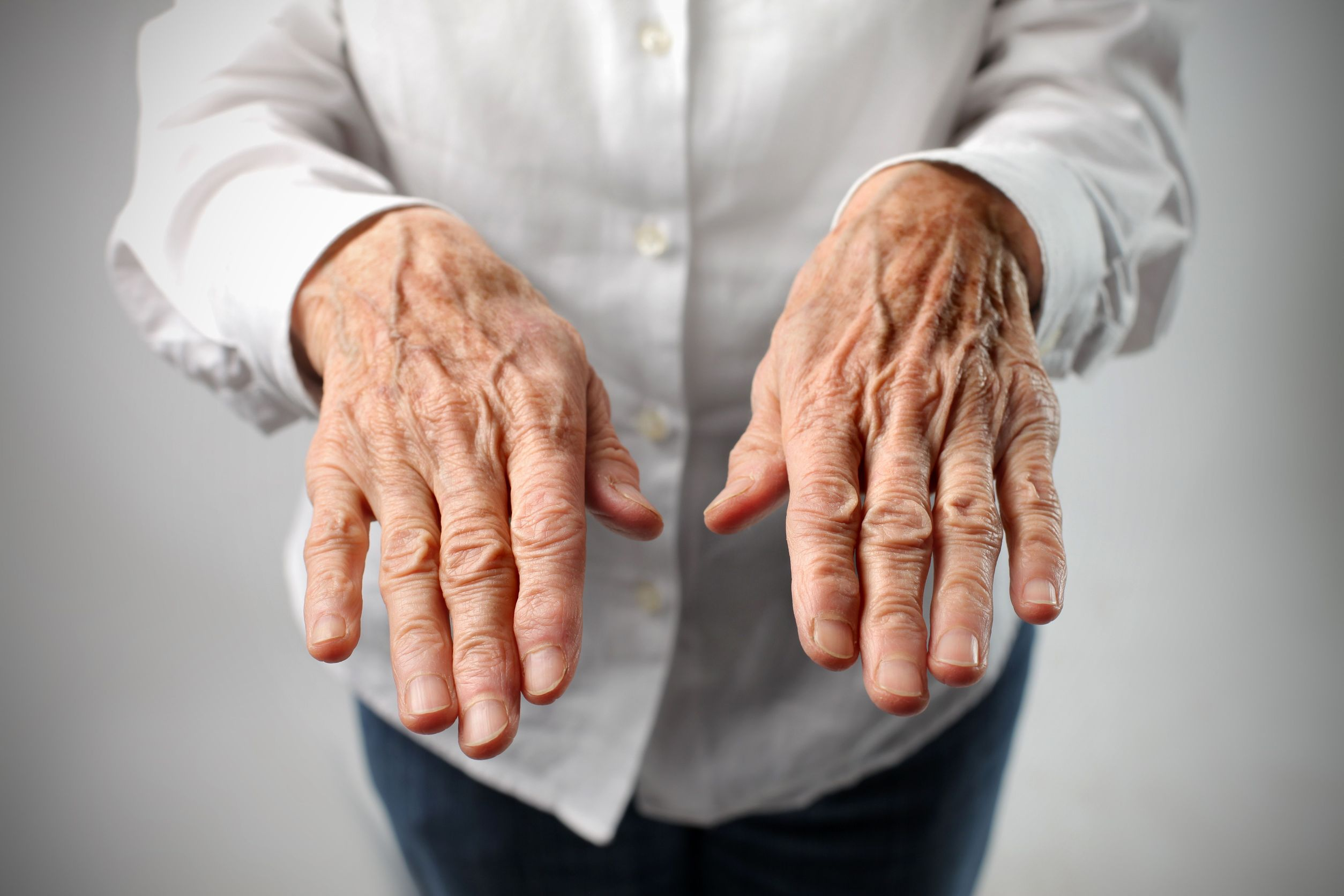 restore old looking hands to young hands