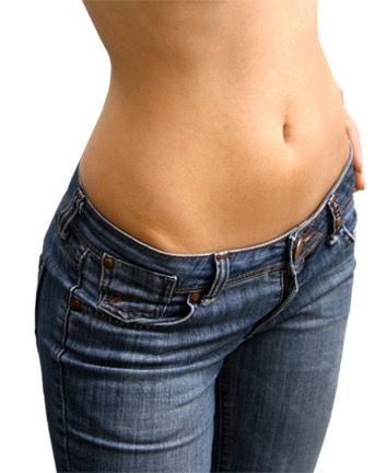 Get rid of stretch marks with Laser Genesis