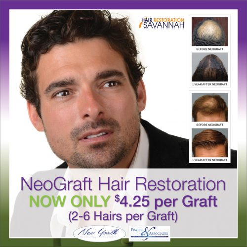 Neograft Hair Restoration is now available for 4.25 per graft - This is not a monthly special - this is a value price that does not expire
