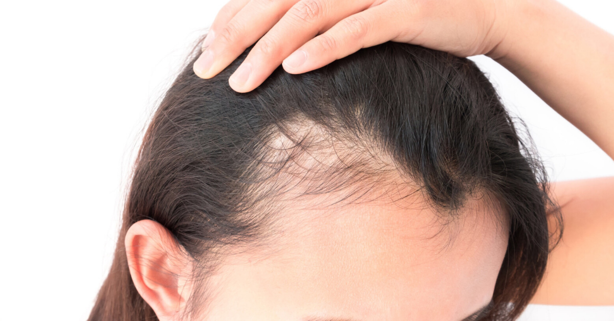 Spectral.DNC-N® topical spray is the first topical hair-loss treatment to employ Nanoxidil® to increase production of growth with no side effects