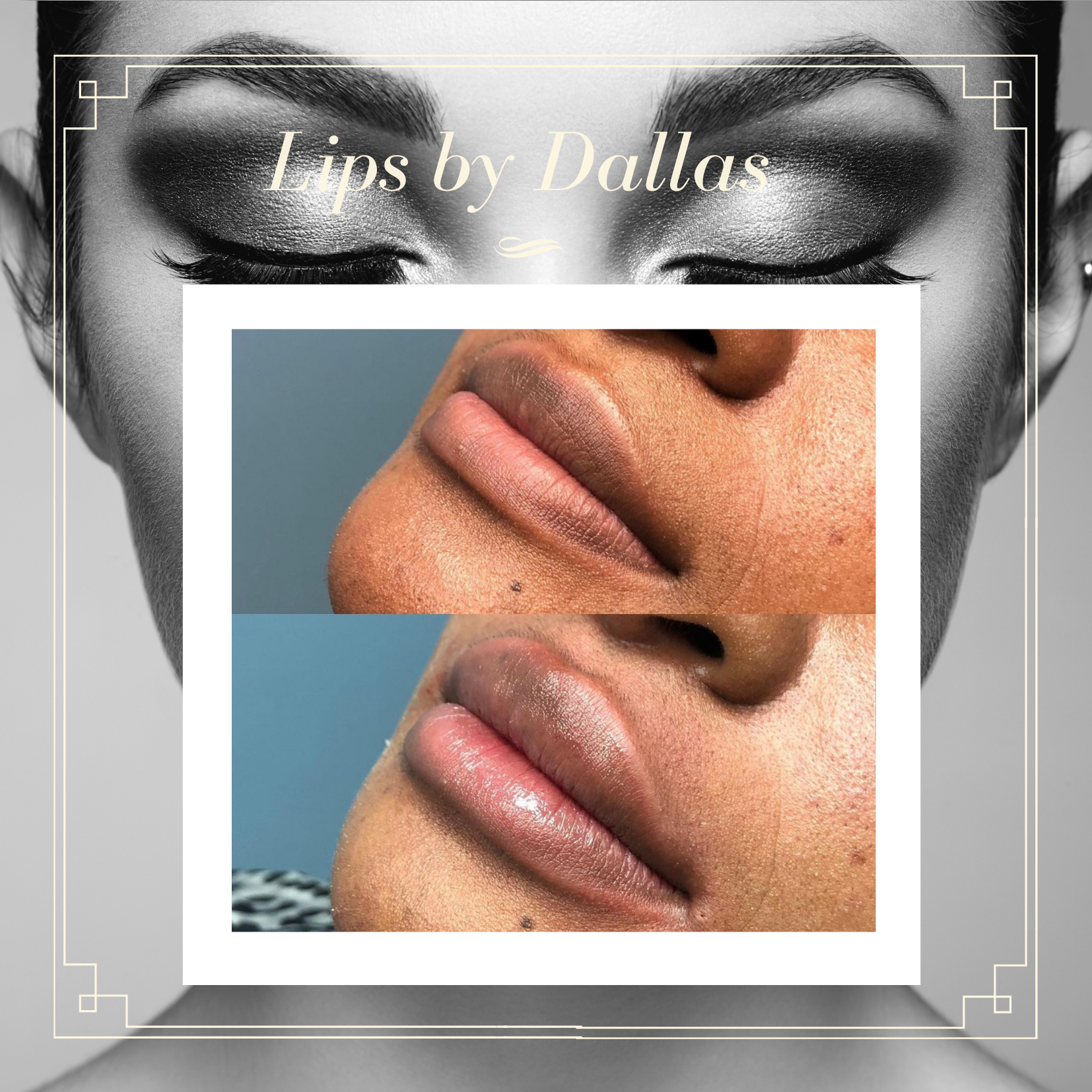 Before and after Lip Filler by Dallas Sellars 1