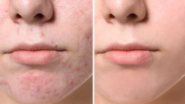 Micro-needling RF can be extremely helpful in treating acne and acne scars