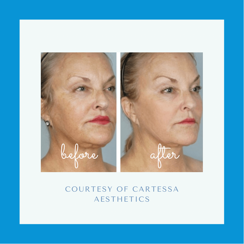 Before and after CoolPeel Laser Treatment