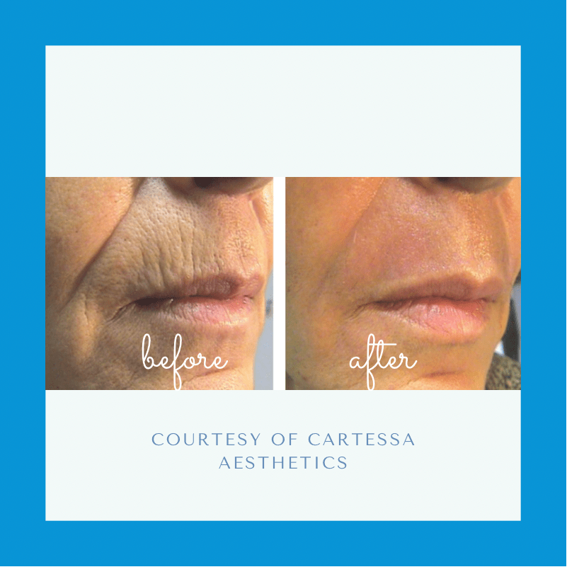 Tetra CO2 Laser Before and after