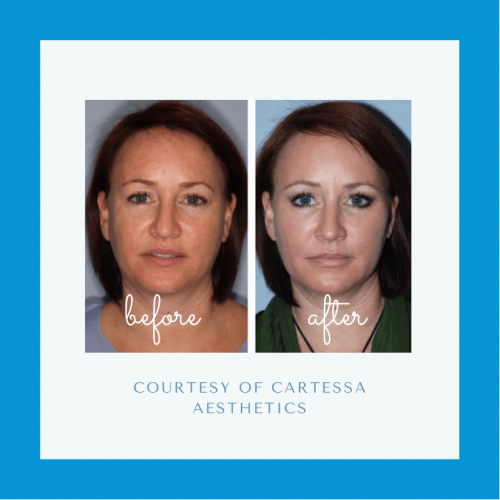Before and after Tetra CO2 Laser Treatment