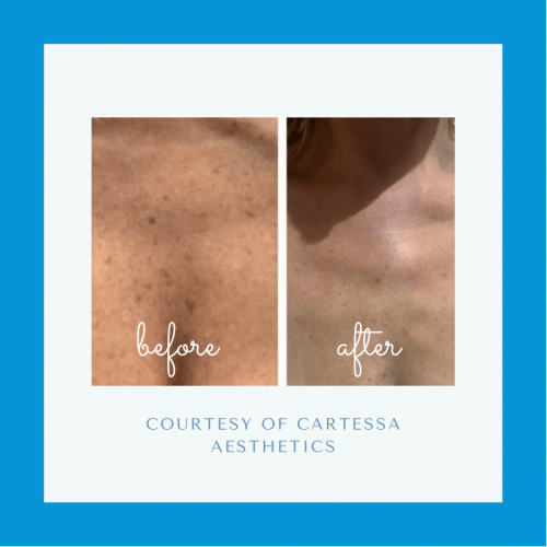 Before and after CoolPeel™ Laser Treatment