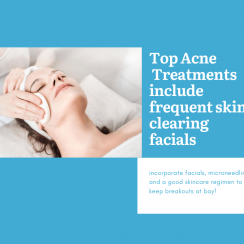 Top Acne Treatments available at New Youth Medical Spa in Savannah