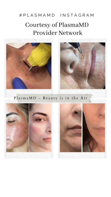Plasma Treatments are perfect for the eye and mouth area