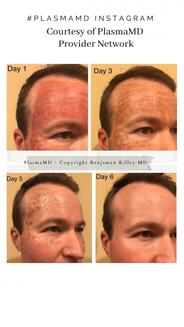 Plasma Treatments for wrinkles and fine lines - Plasma MD