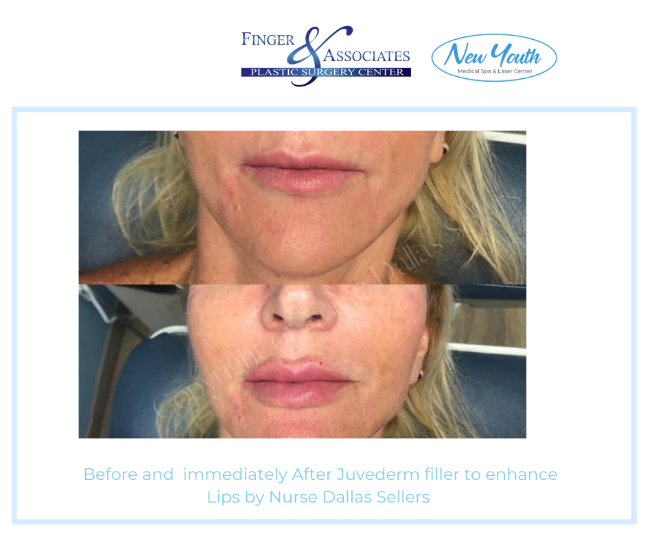 Lip Filler by Nurse Injector Dallas Sellars