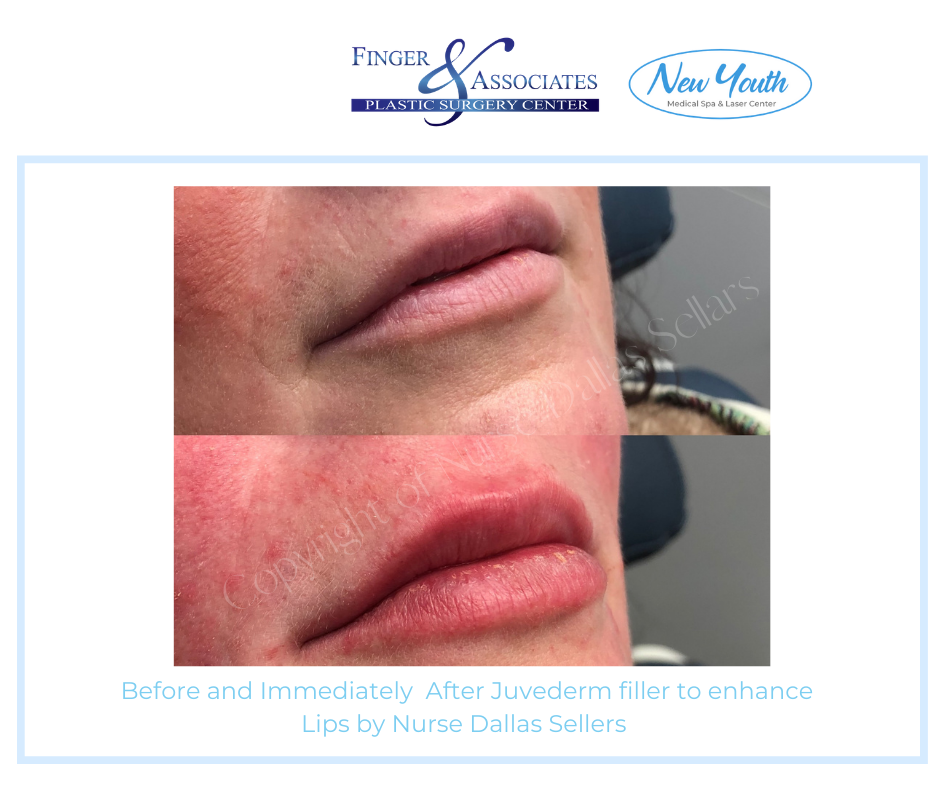 Before and after Lip Filler by Nurse Injector Dallas