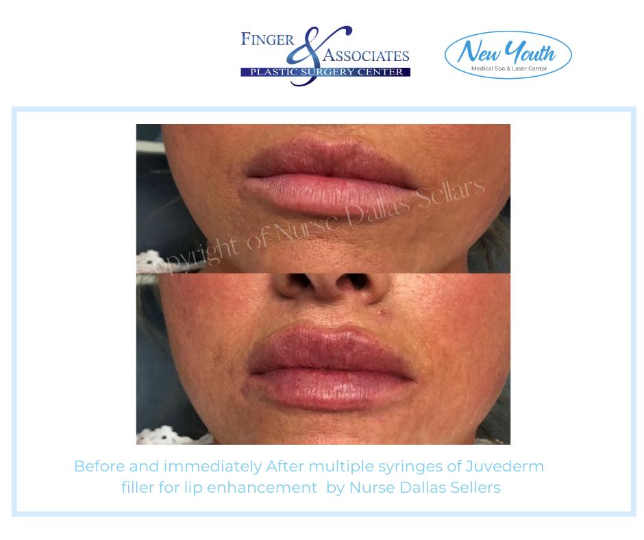 Lips by Nurse Injector Dallas Sellars in Savannah