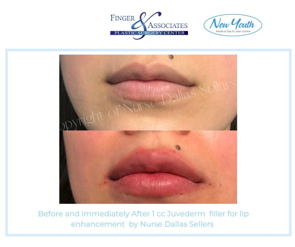 Before and after Lip Enhancement by Nurse Injector Dallas Sellars.