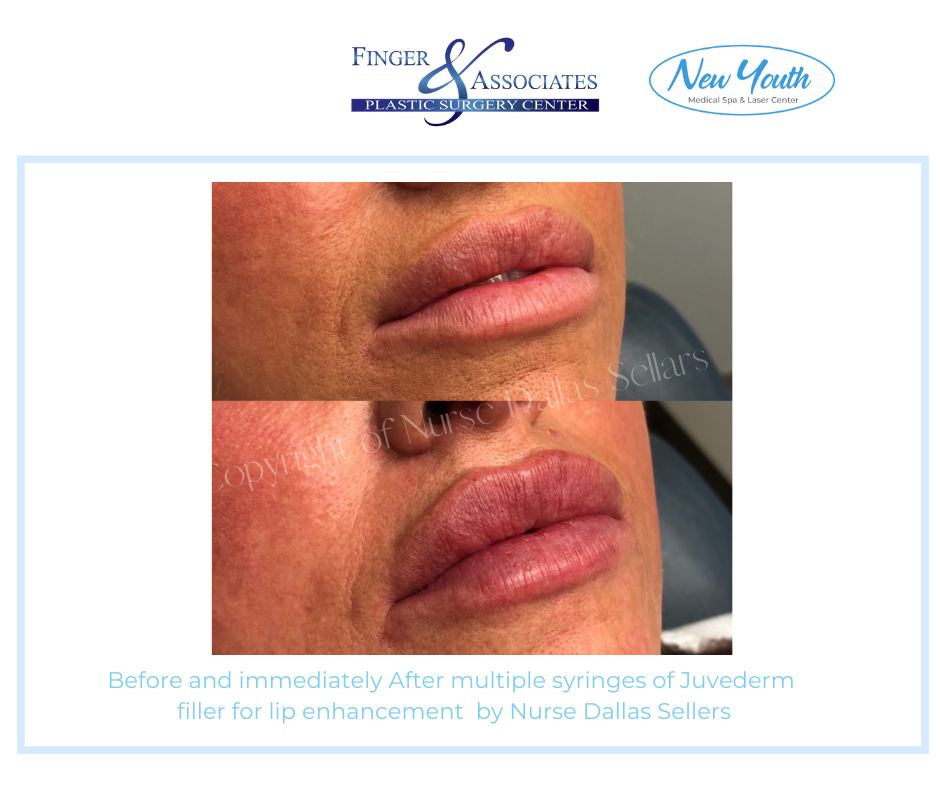 Lip Filler by Nurse Injector Dallas