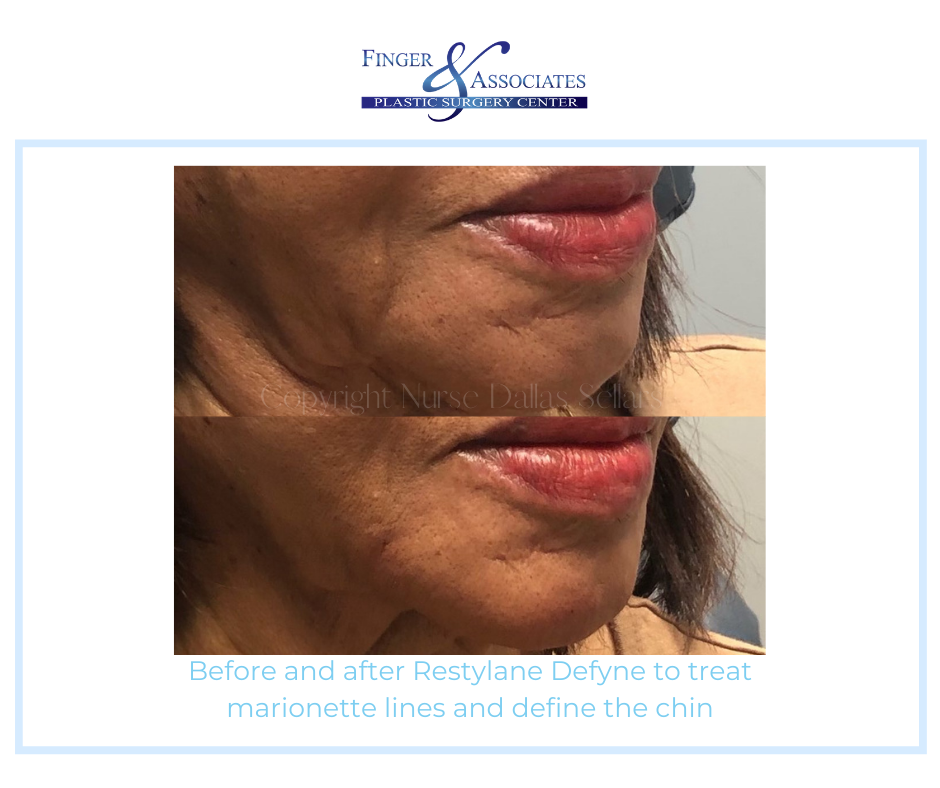 Before and after marionette line treatment by Nurse Injector Dallas Sellars