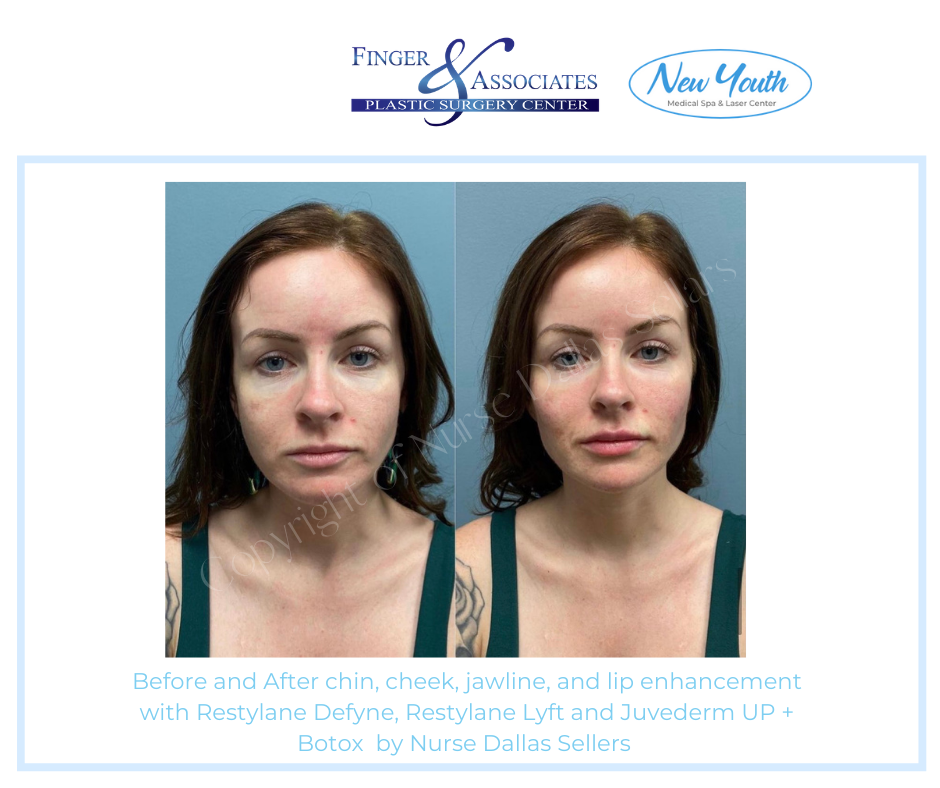 Nurse Injector Dallas used filler and Botox to rejuvenate and shape this young lady's face