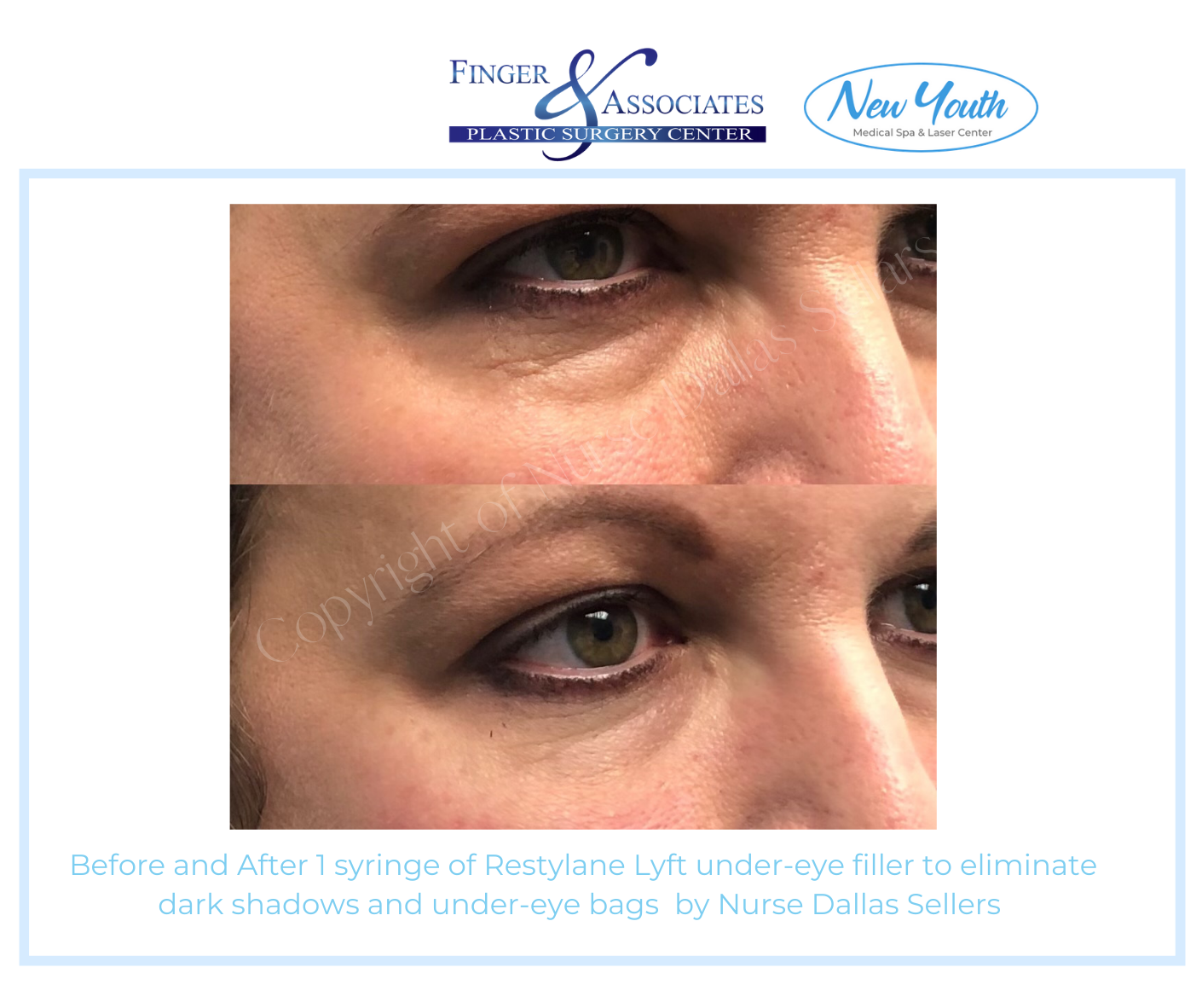 Before and after Restylane Lyft under Eye filler by Nurse Injector Dallas Sellars